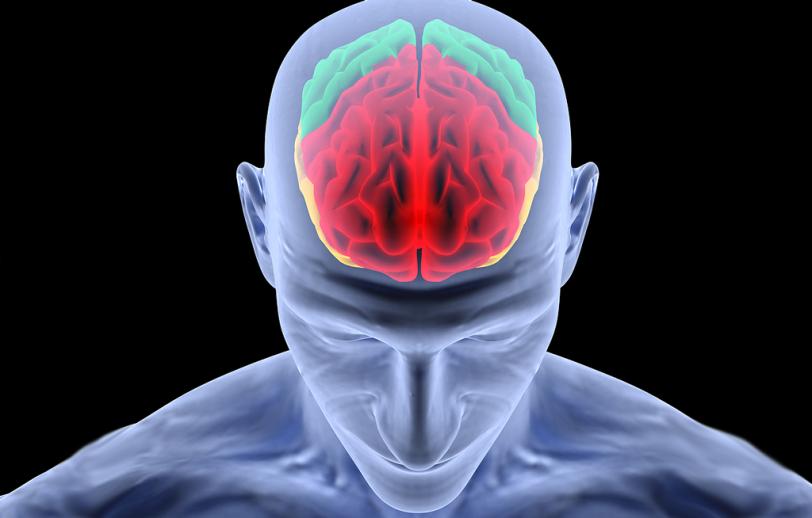 Brain_004